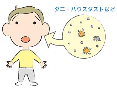 アトピー性皮膚炎のアレルゲン